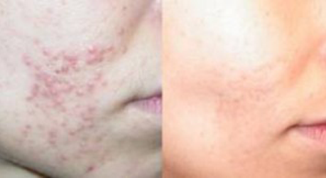Photodynamic Therapy, Before and After