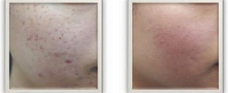 Dermapen Micro-Needling, Before and After