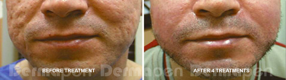 Dermapen at Clinical Aesthetics of Tulsa