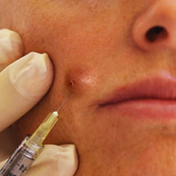 Clinical Aesthetics of Tulsa, Pimple Injection