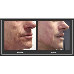 Portrait Skin Regeneration, Before And After