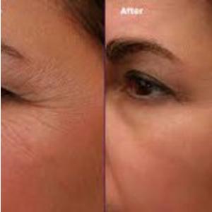 Portrait Skin Regeneration, Before And After