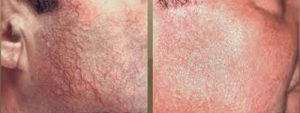 Laser Vein Removal, Before and After