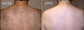 Laser Hair Removal, Before and After