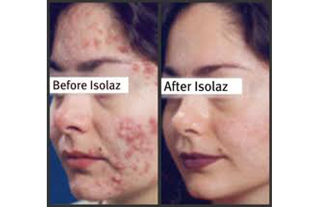 Isolaz, Before and After