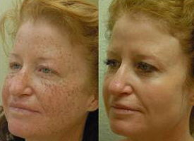 FotoFacial Before and After, Clinical Aesthetics of Tulsa