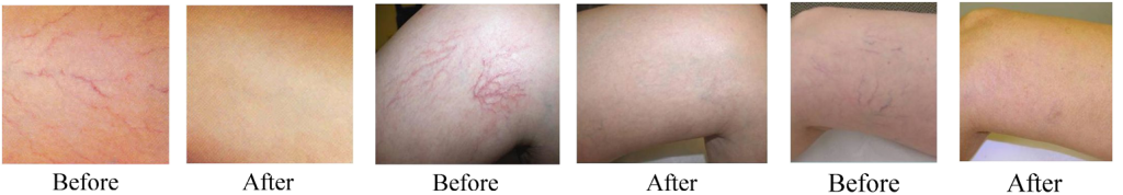 Laser Vein Removal - Legs, Before and After