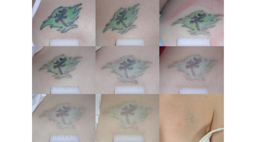Tattoo Removal, Clinical Aesthetics of Tulsa