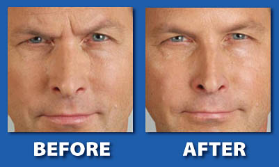 Xeomin, Before and After