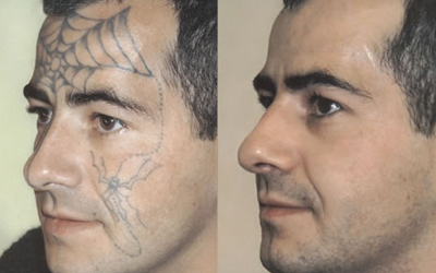 Tattoo removal clinical aesthetics of tulsa for Topical analgesic for tattoos