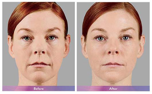 Botox, Xeomin & Fillers • Clinical Aesthetics of Tulsa