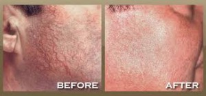 Laser Vein Removal, Clinical Aesthetics of Tulsa